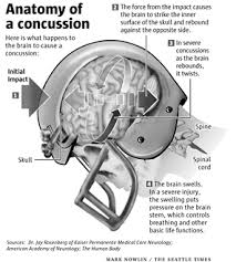 Anatomy of a Concussion Injury